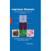 Lung Cancer Metastasis - Novel Biological Mechanisms and Impact on Clinical Practice
