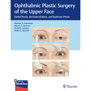 Ophthalmic Plastic Surgery of the Upper Face - Eyelid Ptosis, Dermatochalasis, and Eyebrow Ptosis
