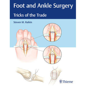 Steven Raikin Foot and Ankle Surgery - Tricks of the Trade
