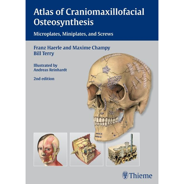 Franz Härle Atlas of Craniomaxillofacial Osteosynthesis - Microplates, Miniplates,and Screws