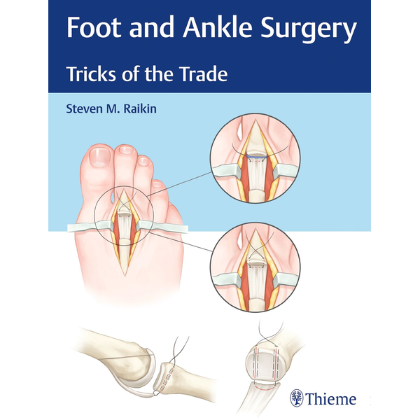 Steven Raikin - Foot and Ankle Surgery - Tricks of the Trade