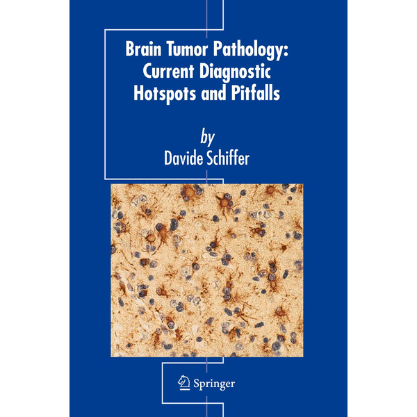 Davide Schiffer - Brain Tumor Pathology: Current Diagnostic Hotspots and Pitfalls