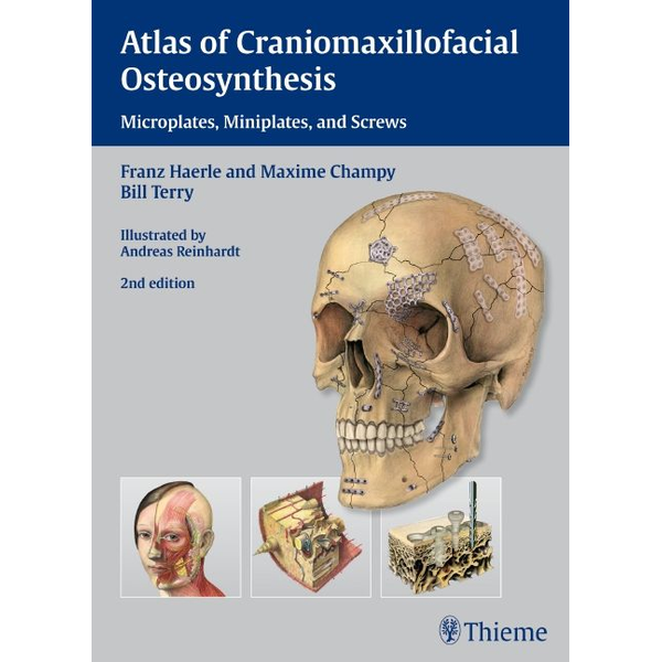 Franz Härle - Atlas of Craniomaxillofacial Osteosynthesis - Microplates, Miniplates,and Screws
