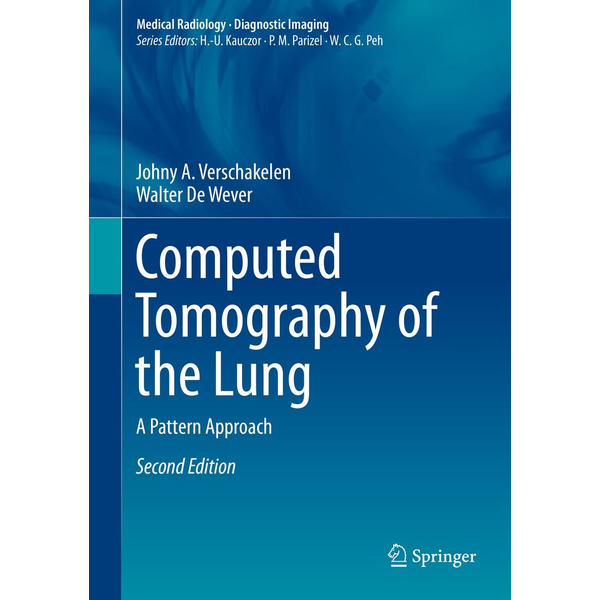 Johny A. Verschakelen - Computed Tomography of the Lung - A Pattern Approach