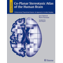Co-Planar Stereotaxic Atlas of the Human Brain - 3-Dimensional Proportional System: An Approach to Cerebral Imaging